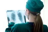 Szczepionka na gruźlicę chroni przed koronawirusem? Lepsza sytuacja epidemiologiczna w krajach objętych programem szczepień i plan badań