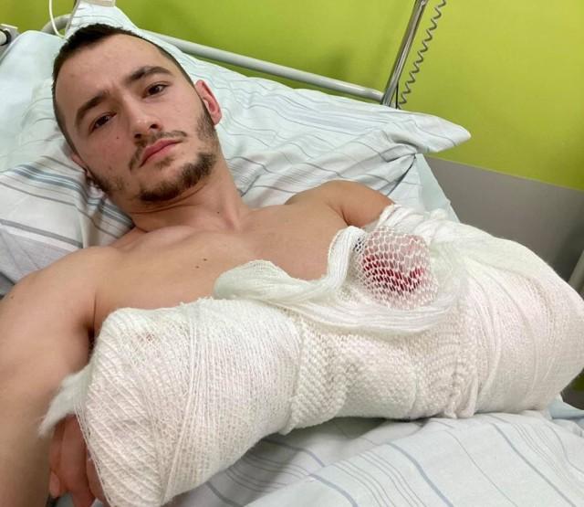 Franek poraniony nożem trafił do szpitala im. Jana Pawła II w Wadowicach