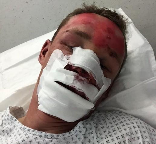 Jarosław Marycz zamieścił zdjęcie ze szpitala na swoim profilu na Twitterze.