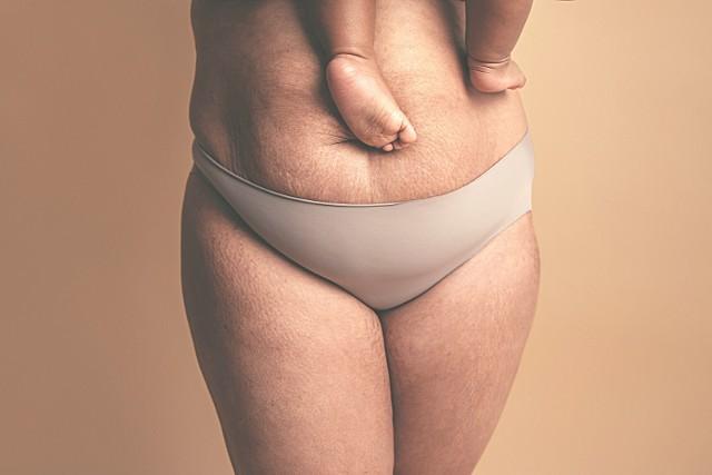Jak wygląda brzuch po porodzie? Powrót do formy po ciąży wcale nie jest błyskawiczny! Zobacz nieretuszowane zdjęcia kobiet po porodzie.