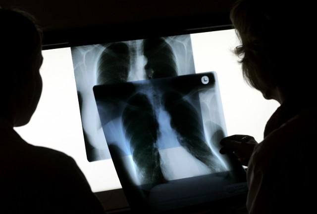 Polacy oprócz szybkiego dostępu do poszczególnych usług, nie tylko medycznych, cenią sobie przede wszystkim fachowość oraz doświadczenie specjalisty, z którego pomocy korzystają