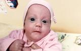 Najmłodszy wcześniak to Paulinka z Chorzowa. Urodziła się w 22. tygodniu ciąży w Rudzie Śląskiej. To sukces na skalę światową