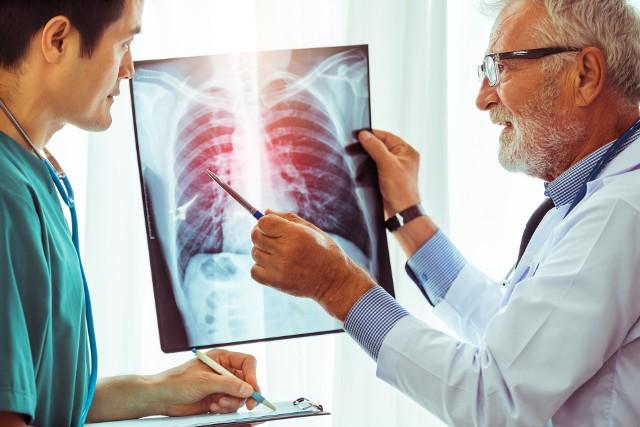 Objawy COVID-19 są długo widoczne nie tylko na zdjęciach płuc. Dolegliwości po chorobie odczuwa aż 8 na 10 ozdrowieńców!
