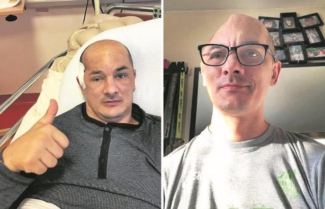 Tomkowi Brzeskiemu brakowało 30 proc. czaszki (zdjęcie z prawej). Teraz nie ma śladu po ubytku