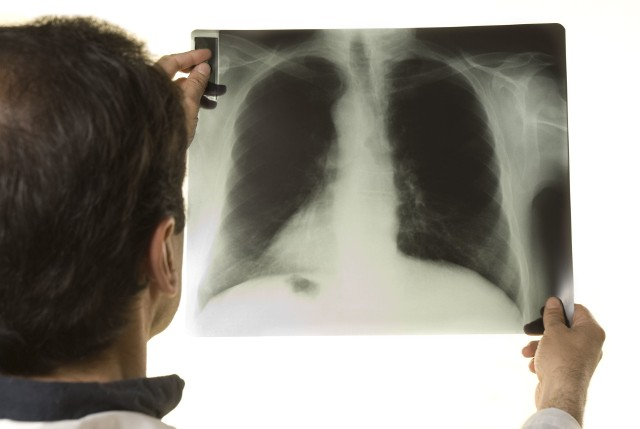 Najważniejszą przyczyną rozwoju chorób płuc jest obecnie COVID-19, czyli infekcja koronawirusem SARS-CoV-2