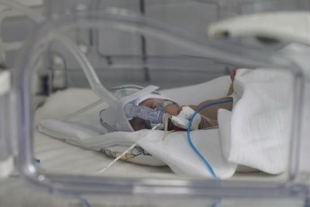Sprawa śmierci dziecka została zgłoszona prokuraturze przez szpital
