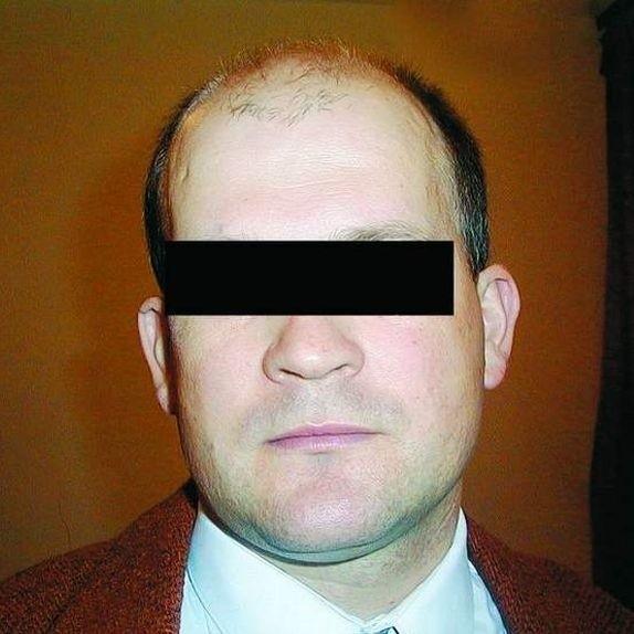 Radni bronią swego kolegi, pomimo że stracił zaufanie społeczne. Jacek K. wyszedł z aresztu, ale jego sprawa trwa.