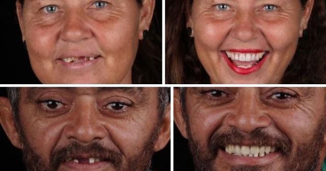 Felipe Rossi to brazylijski stomatolog. Jednak zamiast zbijać kokosy w prywatnej klinice, leczy za darmo zęby ubogich ludzi, których nie stać na leczenie stomatologiczne. Zobaczcie na kolejnych slajdach, jak niesamowitą zmianę w wyglądzie funduje wyleczenie zębów!