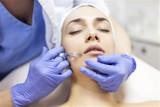 Lekarze alarmują: w Polsce przybywa osób uzależnionych od zabiegów medycyny estetycznej. Polubiliśmy botoks i modelowanie ust