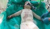 Białystok. W DSK walczą o życie małej Klaudii. Dziewczynka wylała na siebie wrzący olej. Potrzebne środki na zakup sztucznej skóry