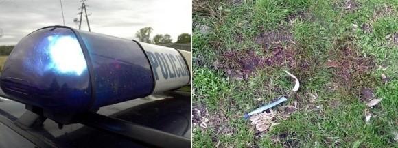 Na trawniku na os. 1000 lecia wciąż są ślady krwi. Stargardzka policja ustala przebieg zdarzeń.