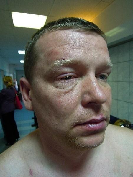– W oko policjant włożył mi palec – mówi Robert Kołodziejczyk.