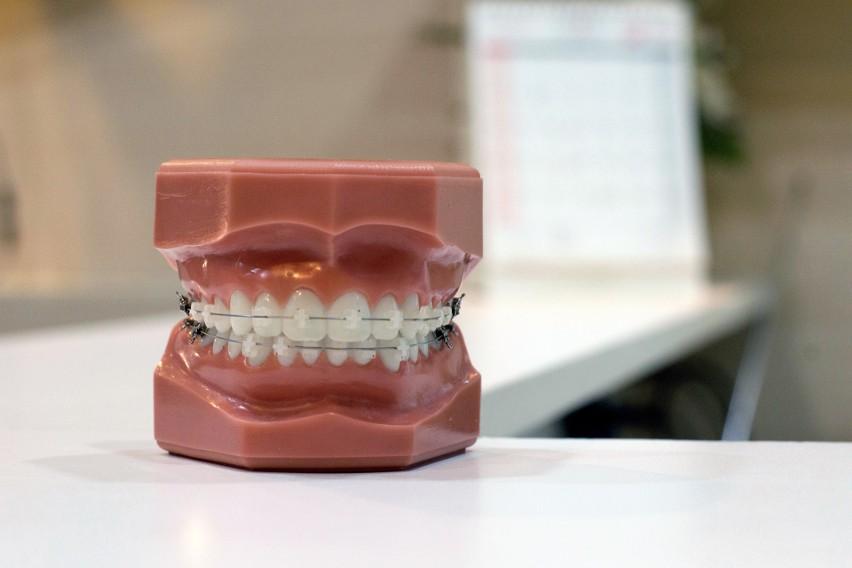 10. Ile kosztuje aparat na zęby?...
