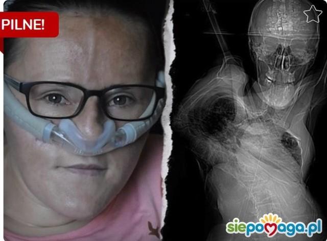 Choroba postępuje tak gwałtownie, że Iwona Glazer nie umie już samodzielnie oddychać. Ratunkiem jest operacja w USA.