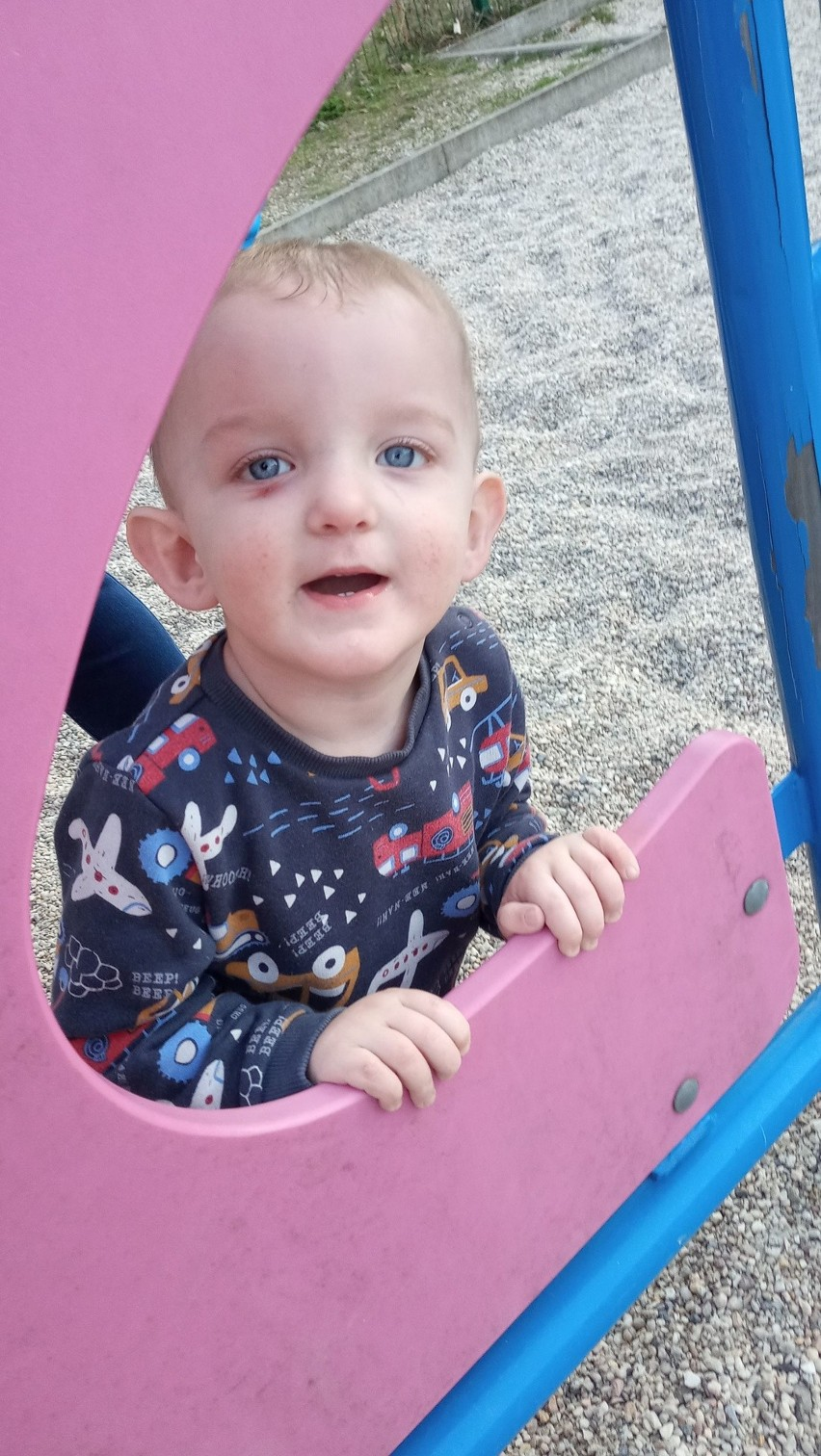 Niestety, ale podczas zabawy na podwórku, 2-letni Michałek...