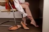 Zakrzepica: objawy, przyczyny, leczenie. Zapalenie żył głębokich. Co to jest i kiedy należy zacząć się niepokoić?