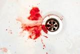 Plucie krwią – jakie są przyczyny krwioplucia? Kiedy kaszel z krwią może być objawem choroby i zagrażać życiu?