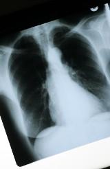 Szczecin: Bezpłatne warsztaty dla pacjentów z rakiem płuca