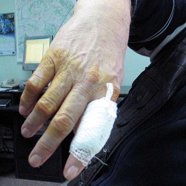 Opatrunek na pogryzioną dłoń panu Adamowi założono dopiero w gabinecie jego lekarza rodzinnego.