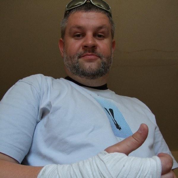 - Gdy obudziłem się rano, ręka opuchła, nie mogłem zrobić nic przy jej pomocy - mówi Marcin Pulkowski