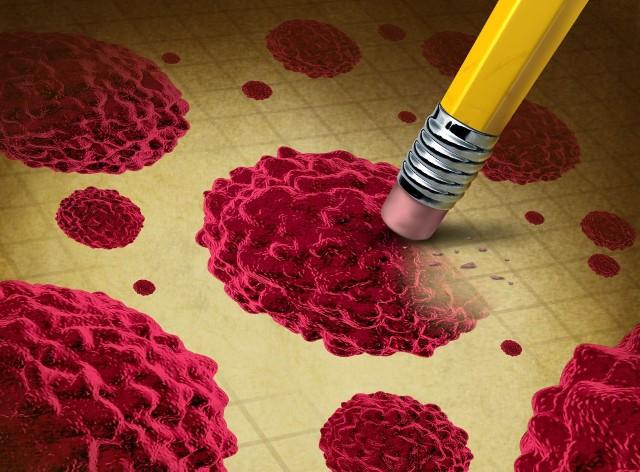 Zobacz na kolejnych slajdach, jakie czynniki sprzyjają rozwojowi nowotworów oraz które z nich możesz wyeliminować, by zmniejszyć zagrożenie zachorowania na raka.
