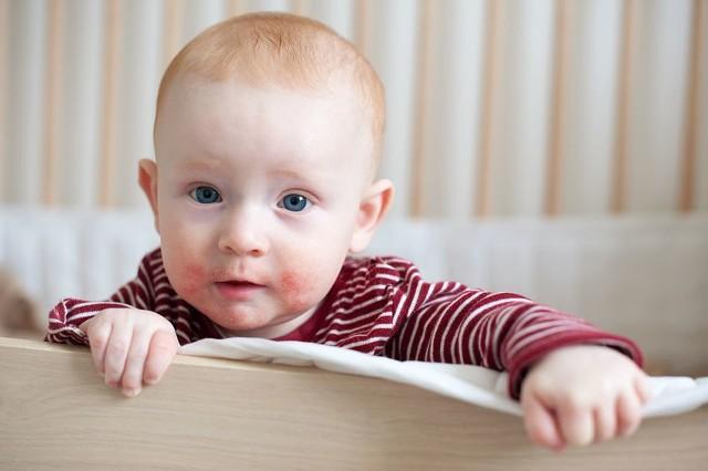 Atopowe zapalenie skóry u dzieci może ujawniać się już w wieku niemowlęcym.
