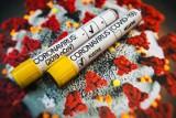 Szczepionka na koronawirusa: Masowe szczepienia na COVID-19 w punktach pobrań drive thru, u lekarzy rodzinnych i farmaceutów? Takie są plany