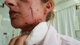Mieszkaniec Strzelec Opolskich pociął żonie twarz i szyję. Teraz pani Kasia została bez środków do życia