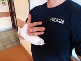 Poznań: Odgryzł kawałek palca policjantowi i pijany uciekał przed policją ulicami miasta. Usłyszał sześć zarzutów i trafił do aresztu