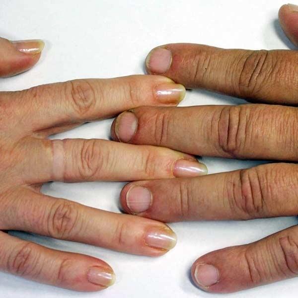 075c9f0201dc13 Przyjrzyj się swoim paznokciom | Nowiny