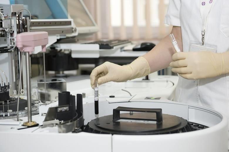 """Koronawirus w Polsce. 4 nowe potwierdzone przypadki koronawirusa 6.03.2020. Jedna z osób podróżowała autokarem z Niemiec z pacjentem """"zero"""""""