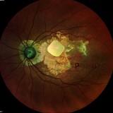 Sukces hiszpańskich i holenderskich badaczy: kobieta odzyskała wzrok po wszczepieniu implantu