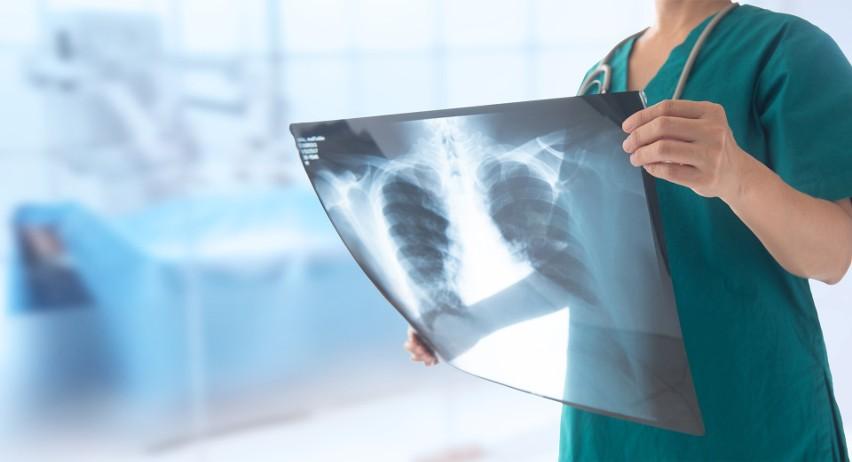 Wirusy RSV powodują choroby układu oddechowego. To bardzo niebezpieczne! Jak możesz chronić siebie i swoją rodzinę przed wirusami RSV?