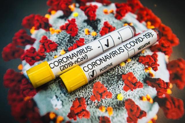 Najnowsze dane o koronawirusie.