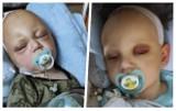 Szymon Berliński z Radomia walczy ze śmiertelną chorobą. Jedynym ratunkiem jest kosztowne leczenie. Trwa zbiórka pieniędzy na operację
