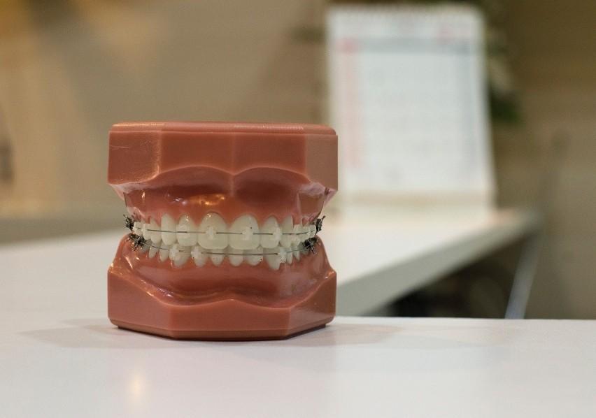 Tak wygląda profesjonalny aparat ortodontyczny,...