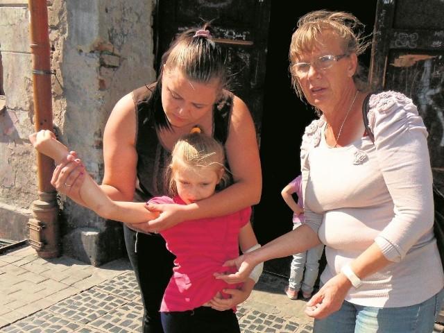 Ciało 8-letniej Zuzi jest posiniaczone. - Lewa ręka pogryziona. Skóra pod pachą rozdarta kłami - mówi Barbara Bęgalska (z prawej). Jej synowa Iwona dodaje: - Ucierpiała też psychika obu dzieci.