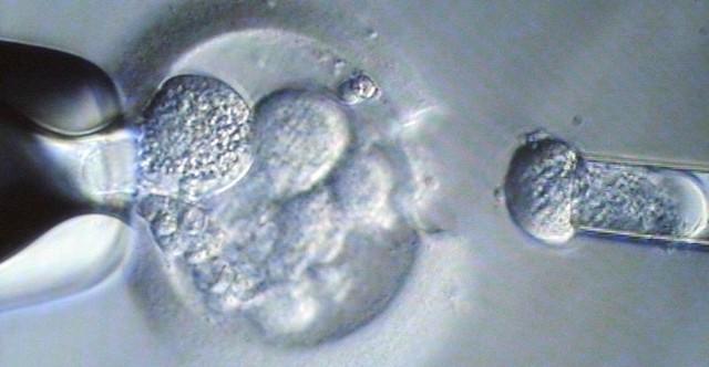 Kiedy będziemy mieli refundację in vitro? Na razie Ministerstwo Zdrowia chce zrobić symulację, ile to może kosztować.