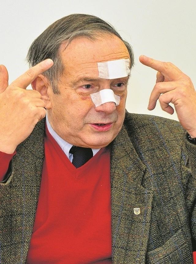 Stanisław Kruk-Ołpiński miał założone trzy szwy nad brwią i jeden na nosie. Dziś widać krwiaki, które utworzyły się pod oczami