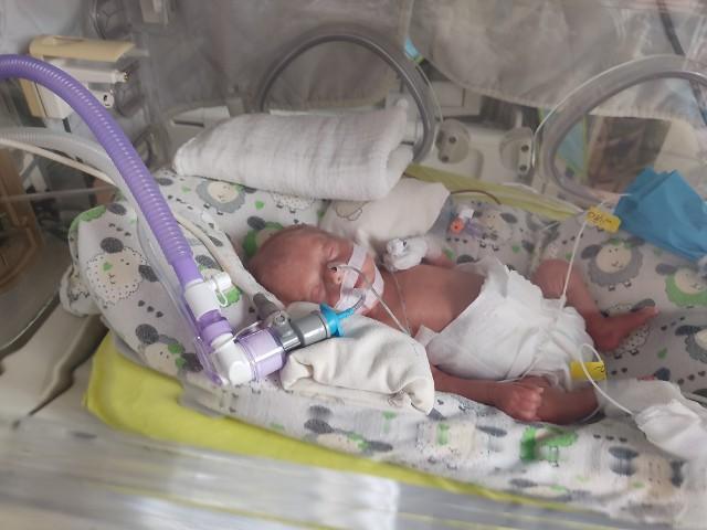 Uratowano dziecko w 25 tygodniu ciąży, dzięki tzw. kordocentezie z równoczesnym przetoczeniem krwi dopłodowo. Wykonano ten zabieg po raz pierwszy w historii szpitala w Zielonej Górze oraz woj. lubuskiego. Teraz pacjentki nie muszą już wyjeżdżać na podobne leczenie do ośrodków w innych województwach.