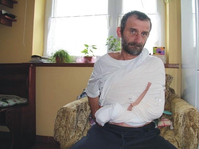 Tylko profesjonalizmowi i błyskawicznemu działaniu jarosławskich lekarzy Józef Pajda z Malenisk pod Jarosławiem zawdzięcza ocalenie dłoni.