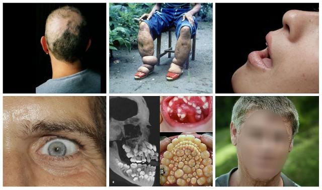 Zdarzają się choroby o tak niezwykłych objawach, że trudno uwierzyć, aby były prawdziwe. Niestety, dziwne, rzadkie choroby często okazują się nieuleczalne, a chorującym na nie osoby utrudnia normalne funkcjonowanie wśród innych ludzi, którzy o ich chorobach nigdy nie słyszeli.Zobacz w galerii najdziwniejsze choroby w historii medycyny ---->