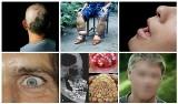 Najdziwniejsze choroby w historii medycyny i ich niezwykłe objawy. Wiele z nich jest nieuleczalnych