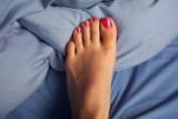Halluksy nie tylko szpecą, ale i bolą. Jak je leczyć?