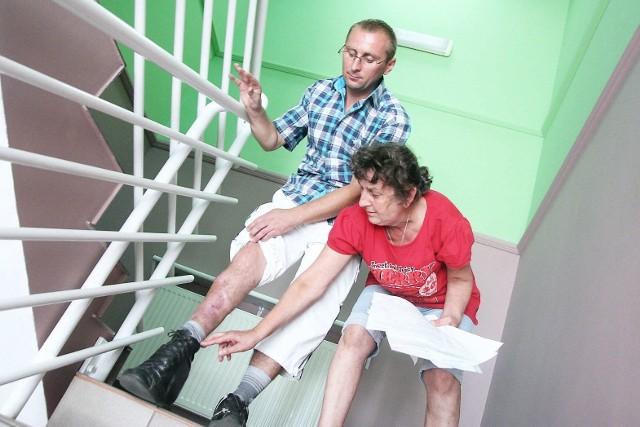 Niepełnosprawny mężczyzna został bez dachu nad głowąTomasz Kuźniarek ma jedną nogę krótszą, dlatego, jak przekonuje Grażyna Sosnowska, nie jest w stanie poradzić sobie samodzielnie