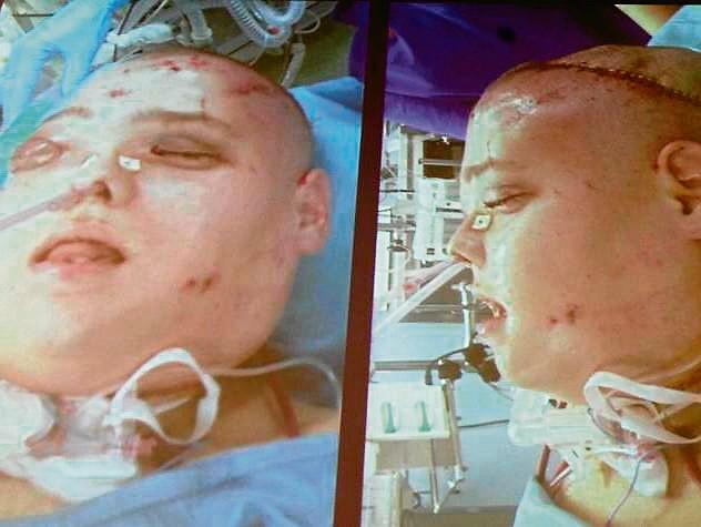 To 27. przeszczep twarzy na świecie i drugi w Polsce. Joanna dostała nową twarz, inni pacjenci - potrzebne narządy od tego samego dawcy. Chirurdzy dziękowali jego rodzinie za wielkoduszność