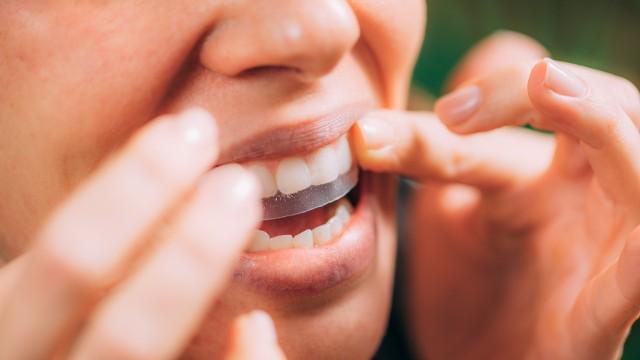 Paski wybielające są powszechnie dostępne – można je kupić w drogeriach, aptekach lub przez internet. Samą kurację wybielającą przeprowadza się w domu, bez konieczności złożenia kilku wizyt w gabinecie stomatologicznym.