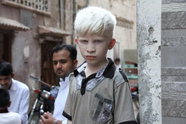 Osoby dotknięte albinizmem całkowitym mają bardzo jasną karnację, włosy (w tym również rzęsy i brwi), a także czerwone lub jasnoniebieskie oczy.
