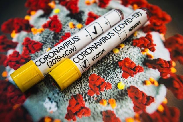 Czeka nas jeszcze bardziej poważna epidemia niż koronawirus?