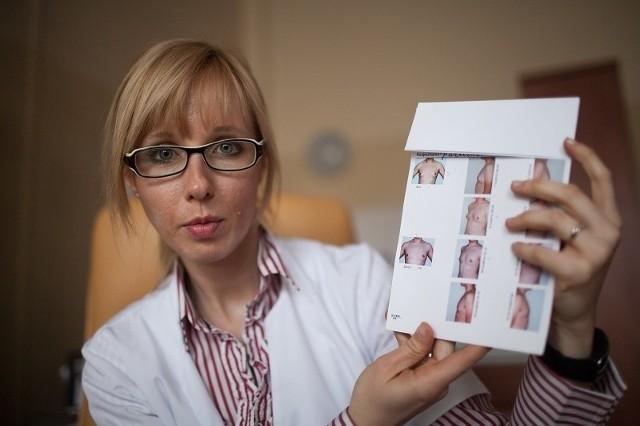 Anna Kasielksa -Trojan napisała doktorat o nieznanych dotąd przyczynach przerostu gruczołu piersiowego u mężczyzn.